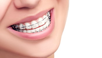 Piękny uśmiech - dla kogo aparat ortodontyczny?