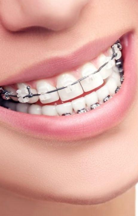 Nowoczesna ortodoncja - sposób na piękny uśmiech