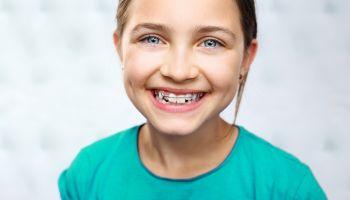 Jak dbać o higienę jamy ustnej z aparatem ortodontycznym? [fot. Adobe Stock]