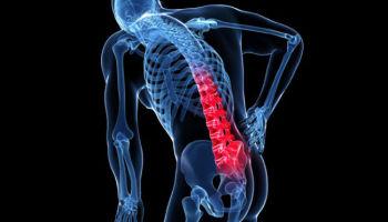 Podejrzenie osteoporozy