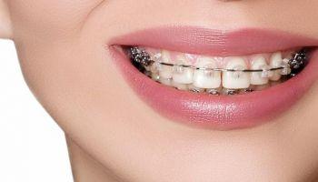 Co należy wiedzieć przed założeniem aparatu ortodontycznego? / fot. fotolia (ip)